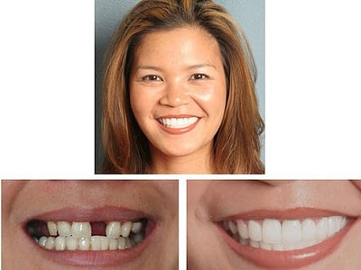 Cosmetic Dental implant Bridge & Crowns-Glen Ellyn