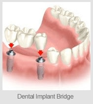 implantbridge1