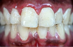 Periodontal-disease-gingivitis-B