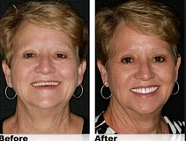Facelift-denture