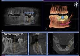comfortable safe dental implants Wheaton