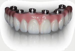 Teeth Tomorrow Implant Bridge