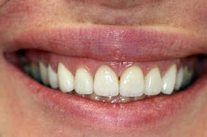 Gummy smile-Gum lift-Porcelain veneers--Wheaton patient