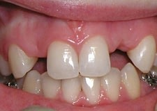 Missing-teeth-anterior-B-400x284
