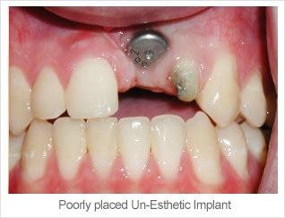 Un-esthetic Implants