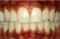 Periodontal-disease-gingivitis-A