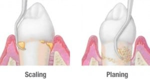 root planning gum disease