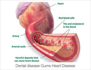Dental Health Heart Disease