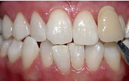 tooth-whitening-glen-ellyn-A