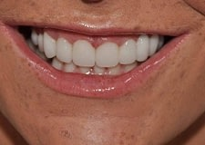 Veneers-Close-After-400x284