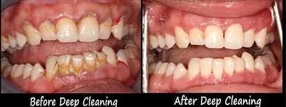 gum treatment Wheaton Glen Elyn