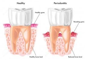 periodontitis, bone loss glen ellyn
