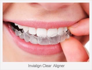 Glen Ellyn, Wheaton, Glendale Heights Invisalign Dentist