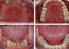 U-L-Implant-Bridges-400x284