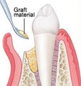 Bone Regeneration-Gum Disease