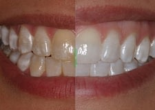 Tooth-Whitening-400x284