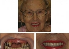 dental-implant-bridge-full-crowns-526x400-400x284