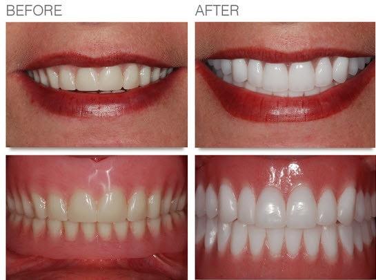 Cosmetic-Denture, Facelift denture
