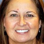 Dental Implant Bridges-Porcelain Veneers-Wheaton patient