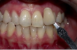 tooth-whitening-glen-ellyN-B