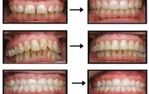Invisalign Invisline Braces – Gentle Family Dentistry