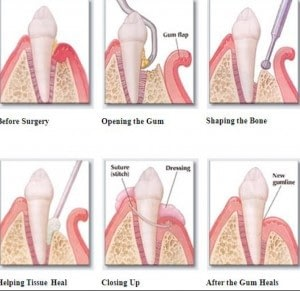 periodontitis treatment cures