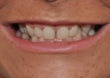 Veneers-Close-Before-400x284