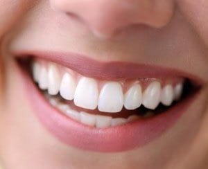 Healthy gums-Beautiful Smile